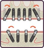 dental Implants by Dentsply