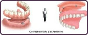 Dental Implants Overdentures