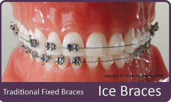 Ice Braces compared against traditional braces