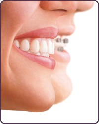 Invisalign compared to traditional metal braces