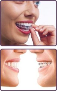 See how easy it is to fit Invisalign Lite aligner