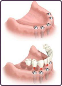 Lower Arch Dental Implants
