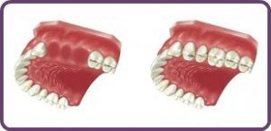 Multiple tooth replacement with implants