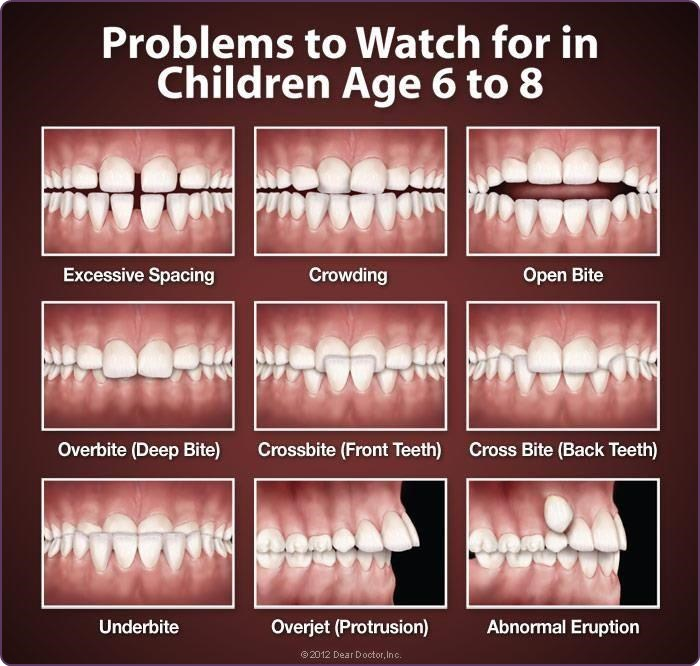 Problems to look out for in childrens teeth