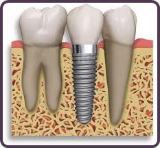 single-implant-illustration