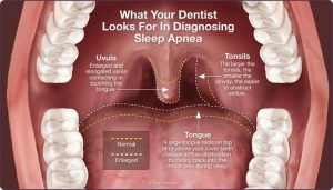 What-dentists-look-for-when-identifying-sleep-apnea