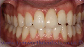 1-Dental-crowns-after