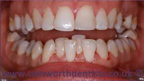 1-Airflow-jet-teeth-polishing-about