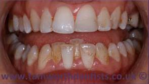 1-Airflow-jet-teeth-polishing-Before