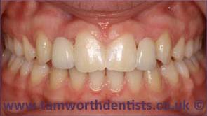 1-Dental-bridges-after