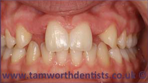1-Dental-bridges-before