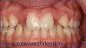 1-Dental-bridges-before
