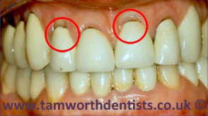 1-Gum-Disease-before