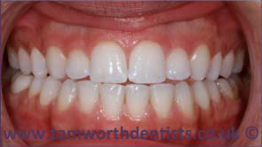 1-inman-aligner-after