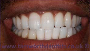 1-invisalign-after