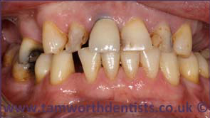 2-Dental-crowns-before
