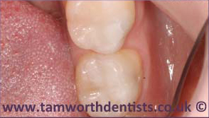 2-Amalgam-removal-after