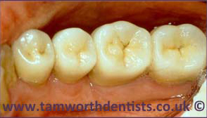 2-Gum-Disease-after
