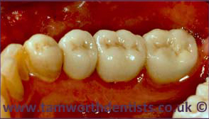 2-Gum-Disease-before