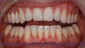 2-inman-aligner-after