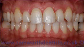 2-invisalign-after