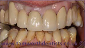 3-Dental-bridges-after