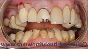 3-Dental-bridges-before