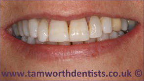 3-Dental-Fluorosis-after