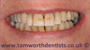 3-Dental-Fluorosis-before