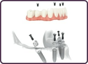 all-on-4 implants tamworth