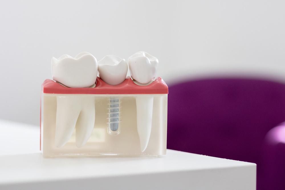Tamworth-Dental-implant-clinic