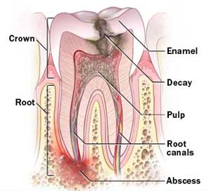Why would i need a root canal?